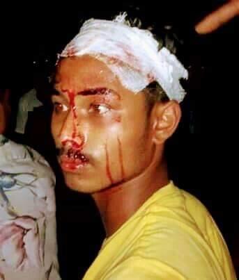রামগড়ে সন্ত্রাসী হামলায় সাংবাদিকের ভাতিজা আহত